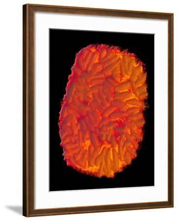Smallpox Virus, Single Virion, as Seen by Negative Stain Electron Microscopy-Fred Murphy-Framed Photographic Print