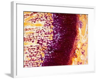 Bone Endochondral Ossification-David Phillips-Framed Photographic Print
