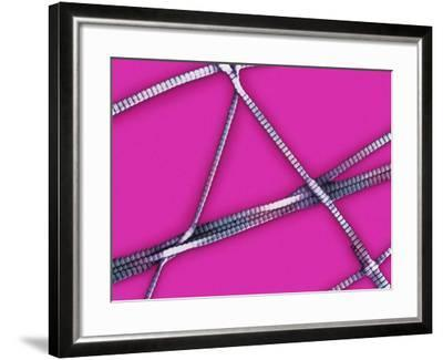 Collagen Fibrils from Human Skin Showing the Characteristic Cross Banding, SEM-Donald Fawcett-Framed Photographic Print