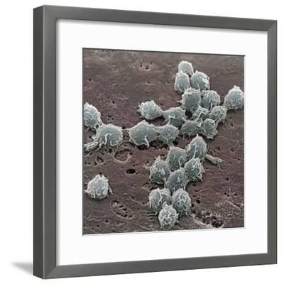 Macrophages on the Surface of Endothelium SEM X3000-David Phillips-Framed Photographic Print