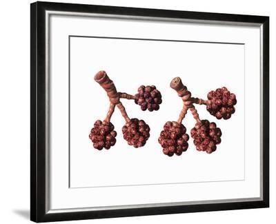 Illustration of an Asthma Attack (Right) Showing Air Passages Blocked by Mucus-Carol & Mike Werner-Framed Photographic Print