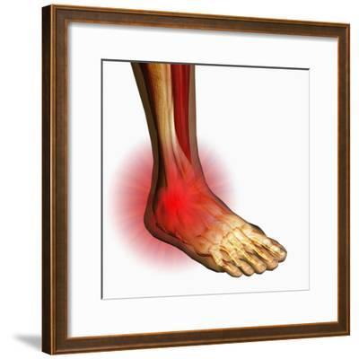 Ankle Pain, Human Ankle Showing Bones And Muscles-Carol & Mike Werner-Framed Photographic Print