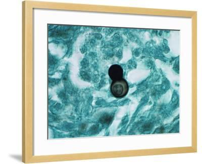 Budding Yeast of Blastomyces Dermatitidis Fungus in Human Skin-Gladden Willis-Framed Photographic Print