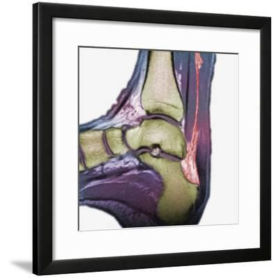 Mri Showing a Severe Rupture of the Achilles Tendon-Scientifica-Framed Photographic Print