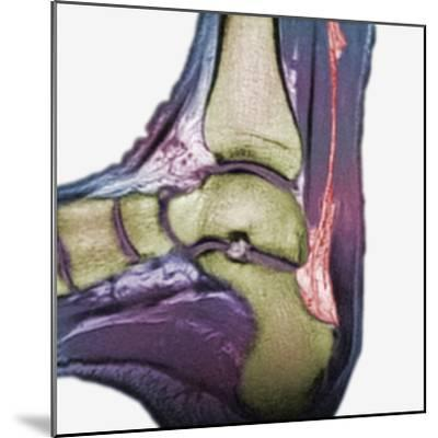 Mri Showing a Severe Rupture of the Achilles Tendon-Scientifica-Mounted Photographic Print