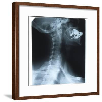Black and White X-Ray Photograph of Person with a Reconstructed Jaw--Framed Photographic Print