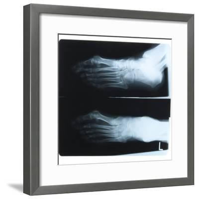 Black and White X-Ray Photograph of Feet of Person--Framed Photographic Print
