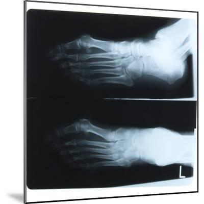 Black and White X-Ray Photograph of Feet of Person--Mounted Photographic Print