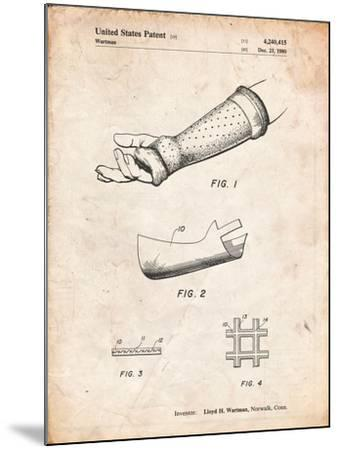 Orthopedic Hard Cast Patent-Cole Borders-Mounted Art Print