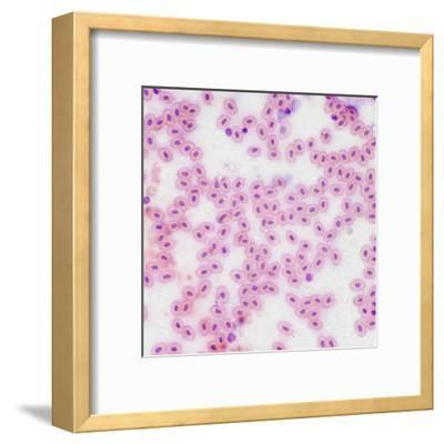 Microscopic Image at 100X of Frog Blood Cells-Greg Dale-Framed Premium Photographic Print