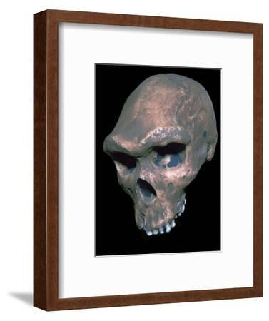 Skull of Homo Sapiens. Artist: Unknown-Unknown-Framed Giclee Print