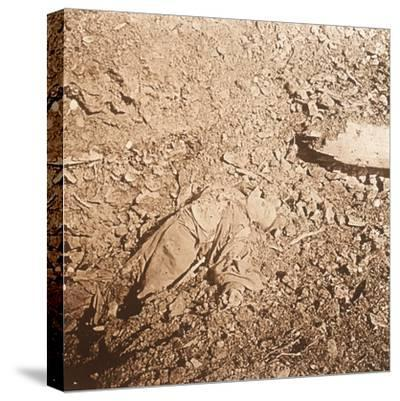 Body of dead soldier, Verdun, northern France, c1914-c1918-Unknown-Stretched Canvas Print