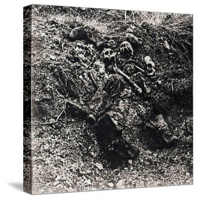 Human remains, c1914-c1918-Unknown-Stretched Canvas Print