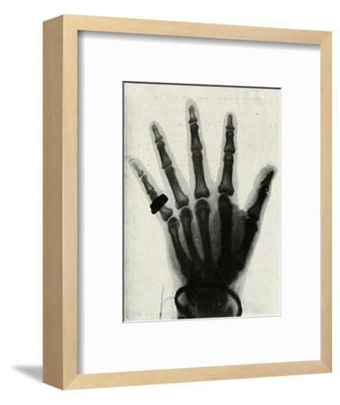 'Radiograph of the Hand of H.R.H. The Prince of Wales', (c1897)-Unknown-Framed Giclee Print