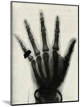 'Radiograph of the Hand of H.R.H. The Prince of Wales', (c1897)-Unknown-Mounted Giclee Print