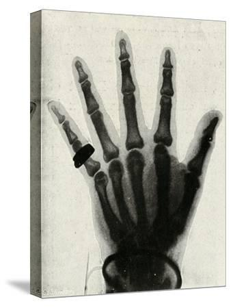 'Radiograph of the Hand of H.R.H. The Prince of Wales', (c1897)-Unknown-Stretched Canvas Print