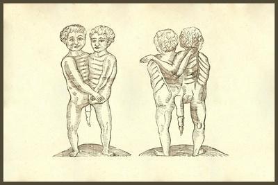 Monstrum Biceps Caudatum Prone & Supine