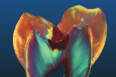 Polarised LM of a Molar Tooth Showing Decay by Volker Steger