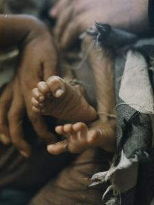 Close View of the Twisted Feet of a Starving Child by W. E. Garrett