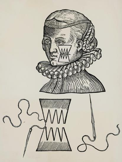Wound to Cheek Treated with Plasters to Prevent Traces of Stitch Marks on Skin, 1579,--Giclee Print