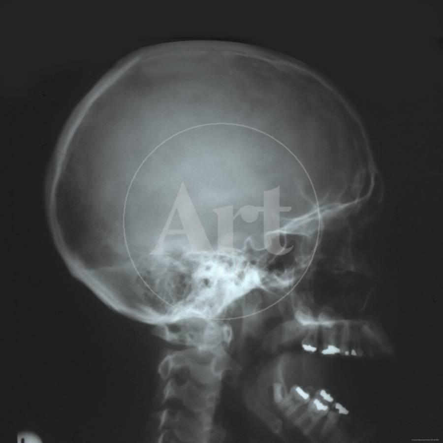 X-Ray Normal Human Skull Mastoid Air Cells Lat View Photographic ...
