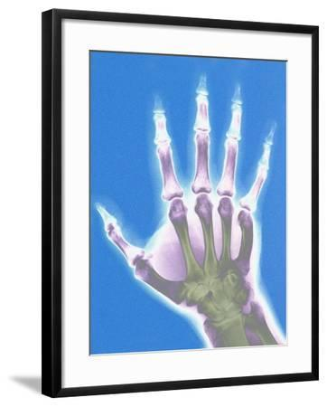 X-ray of a Hand--Framed Photographic Print
