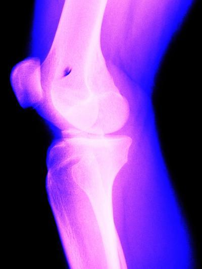X-Ray of a Knee--Photographic Print