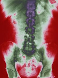 X-ray of a Torso