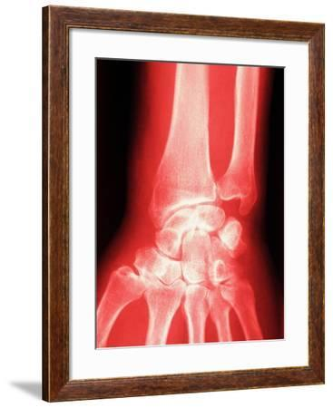 X-ray of a Wrist--Framed Photographic Print