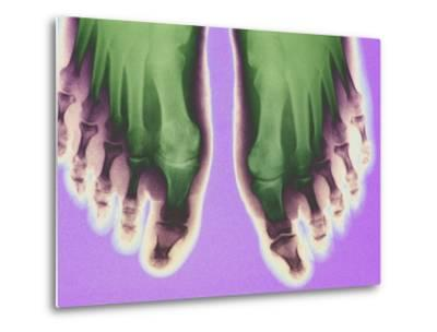 X-ray of Feet--Metal Print