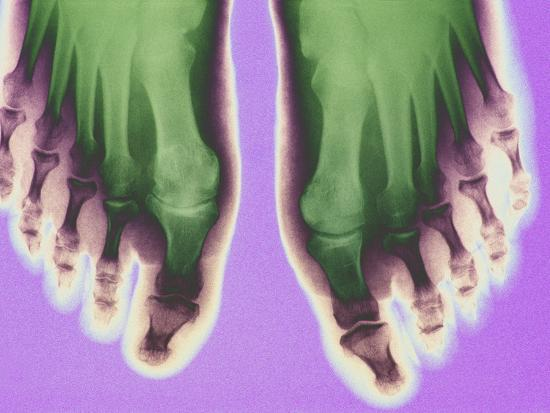 X-ray of Feet--Photographic Print