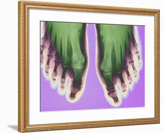 X-ray of Feet--Framed Photographic Print