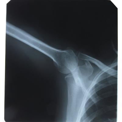 X-Ray Photograph of Shoulder of Person--Photographic Print