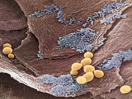 Yeast, Candida Albicans, on Vaginal Epithelium Other Bacteria, Colorized Blue Is also Visible-David Phillips-Photographic Print